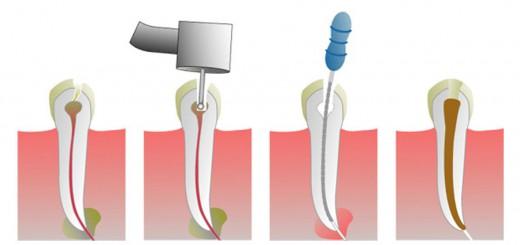 wortelkanaalbehandeling2